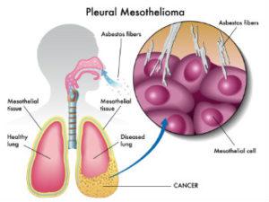 Pleural Mesothelioma cancer