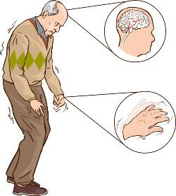 Paraquat, Paraquat weed-killer, weed-killer, Parkinson's disease,